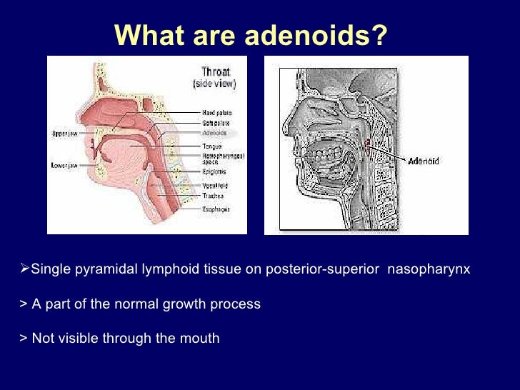 What are adenoids?   <ul><li>Single pyramidal lymphoid tissue on posterior-superior  nasopharynx > A part of the normal gr...