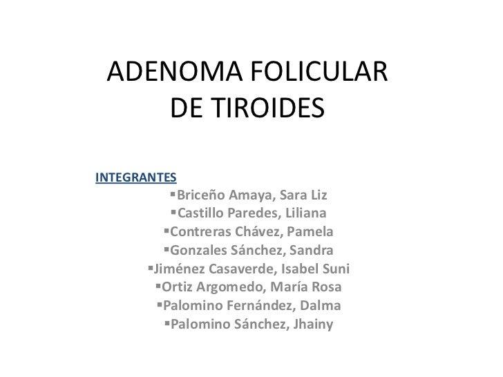 ADENOMA FOLICULAR DE TIROIDES<br />INTEGRANTES<br /><ul><li>Briceño Amaya, Sara Liz