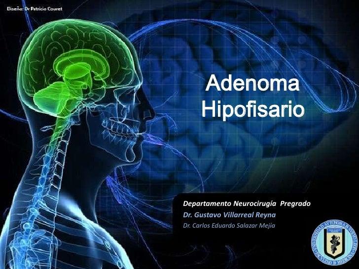 Adenoma Pituitario Pdf