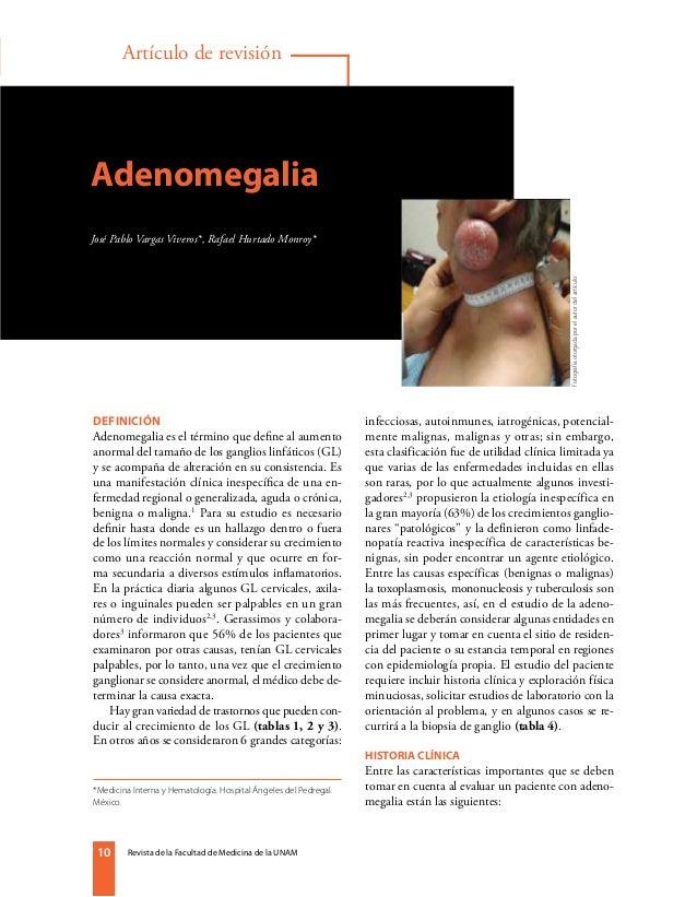 Revista de la Facultad de Medicina de la UNAM1010 Artículo de revisión Adenomegalia José Pablo Vargas Viveros*, Rafael Hur...