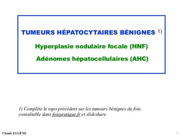 TUMEURS HÉPATOCYTAIRES BÉNIGNES 1) Hyperplasie nodulaire focale (HNF) Adénomes hépatocellulaires (AHC) 1) Complète le topo...