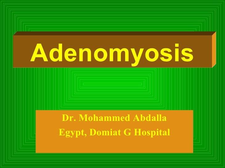 Dr. Mohammed Abdalla Egypt, Domiat G Hospital Adenomyosis