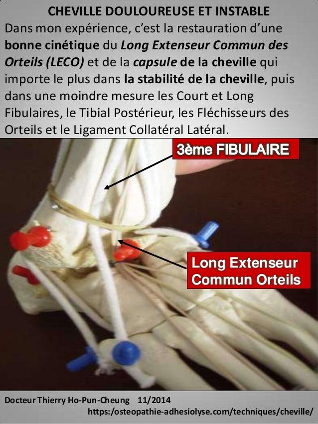 CHEVILLE DOULOUREUSE ET INSTABLE  Dans mon expérience, c'est la restauration d'une  bonne cinétique du Long Extenseur Comm...