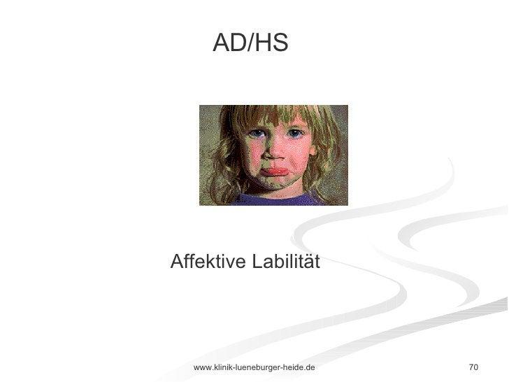 Affektive Labilität AD/HS