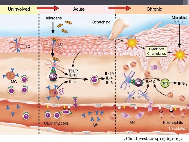 Contact dermatitis: MedlinePlus Medical Encyclopedia