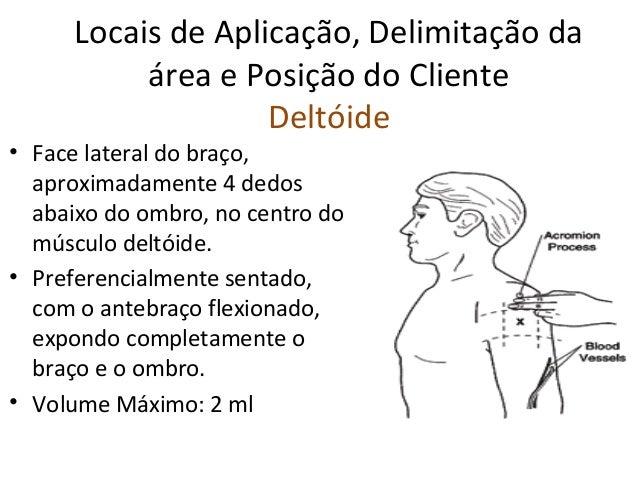 Locais de Aplicação, Delimitação da área e Posição do Cliente Deltóide • Face lateral do braço, aproximadamente 4 dedos ab...