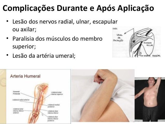 ComplicaçõesDuranteeApósAplicação • Lesão dos nervos radial, ulnar, escapular ou axilar; • Paralisia dos músculos do m...