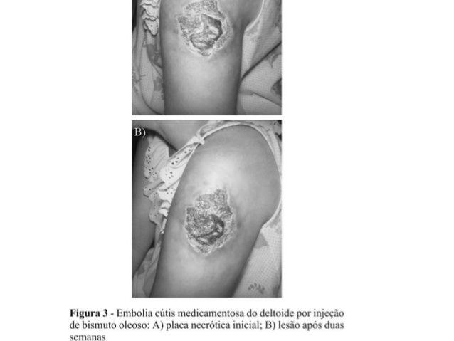 • Gangrena por lesão de vasos sanguíneos; • Reações orgânicas por intolerância a solução injetada; • Inflamações provocada...
