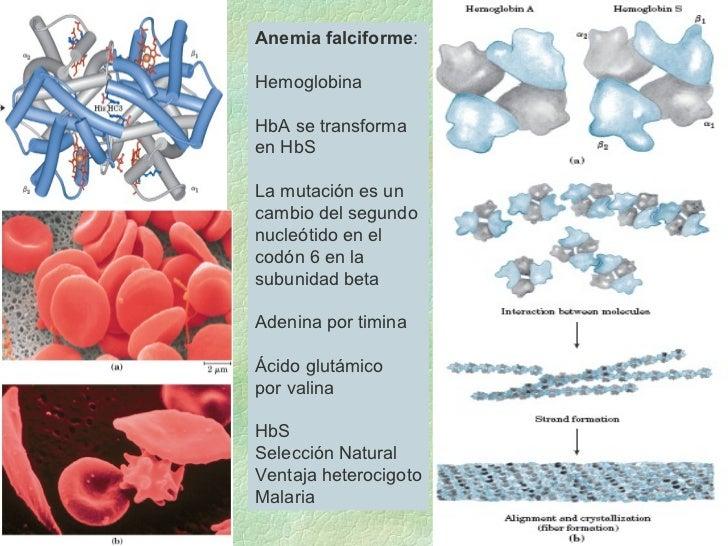 Anemia falciforme : Hemoglobina HbA se transforma en HbS La mutación es un  cambio del segundo nucleótido en el  codón 6 e...