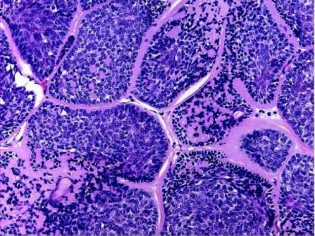MICROSCOPY • Small ducts lined by two layers of cuboidal epithelium • Ducts have a comma-like tail • Solid nests and stran...