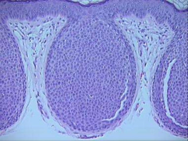 • PAS positive diastase- resistant granules are present in the apices of the large cells