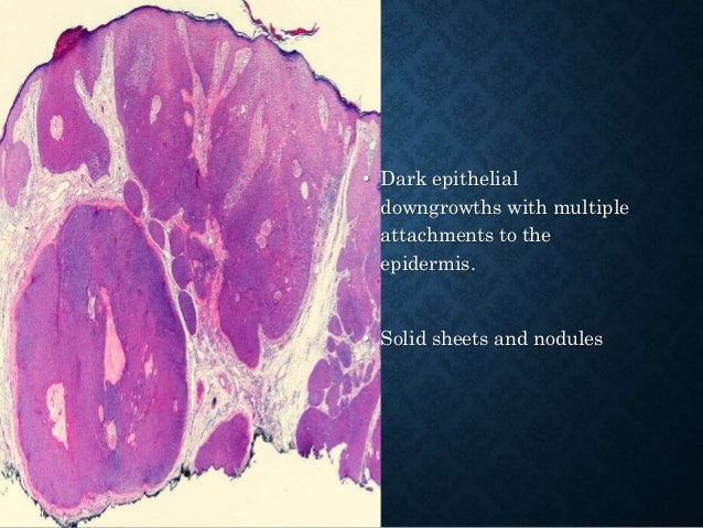 SEBACEOUS LESIONS OF THE SKIN Ectopic Sebaceous Glands: • Fordyce's spot Hamartomas and Hyperplasias: • Folliculosebaceous...
