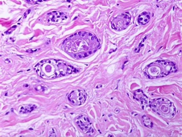 MUIR-TORRE SYNDROME (MTS) • In 1967, Muir and Torre each reported patients with multiple cutaneous tumors along with visce...
