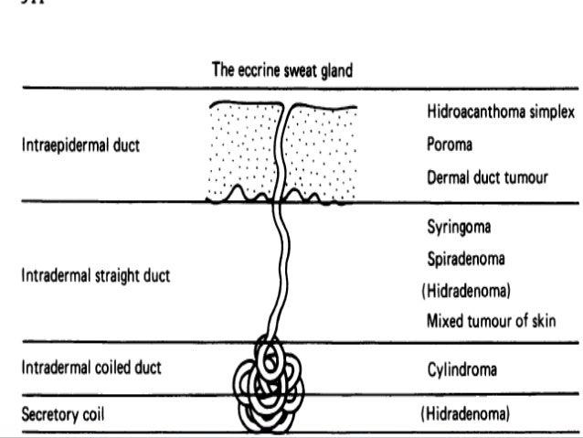 • Criteria for the diagnosis of MTS- • At least one sebaceous neoplasm (either sebaceous adenoma, sebaceous epithelioma, o...