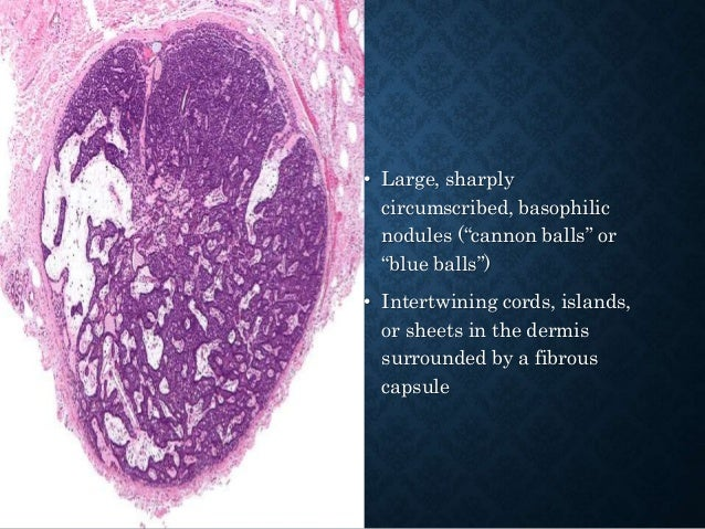 • exoendophytic, symmetrical lesion characterized by deep bulbous lobules of keratinizing well differentiated squamous epi...