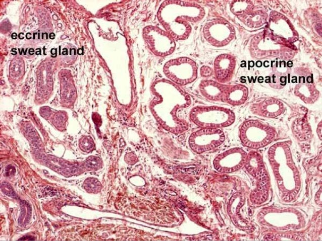 • EMA, S-100 protein, and carcinoembryonic antigen (CEA)- differentiation between sebaceous and sweat gland neoplasms in m...