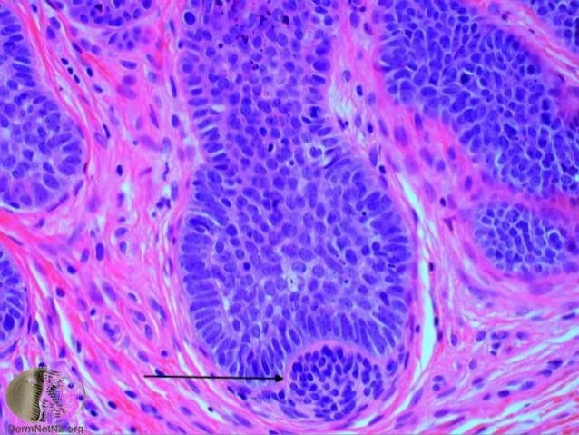 • Sharply circumscribed with uniform small dark cells closely resembling hair matrix cells