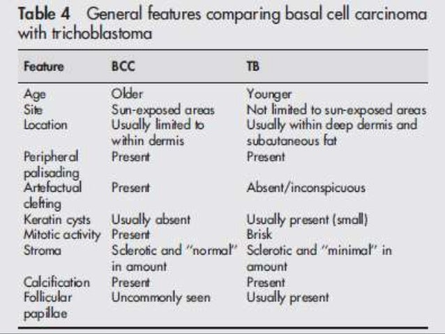 A transition from basaloid to ghost cells is seen in most areas which may be abrupt or gradual