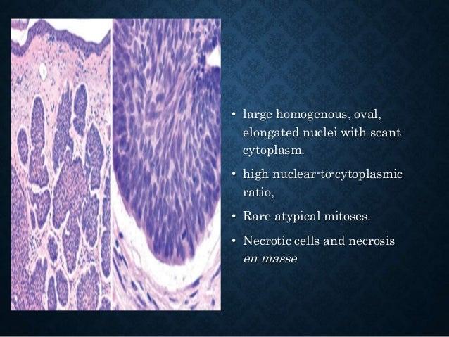PARTIALLY CYSTIC TUMORS- DDX • Pilomatricoma • Pilar tumour • Hidradenoma • Chondroid syringoma