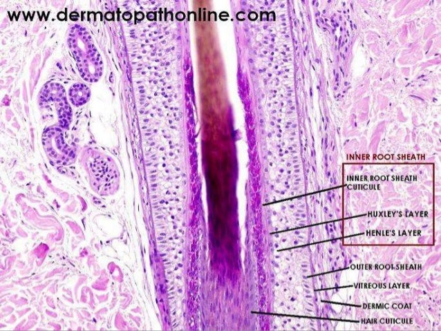 • Extension of epithelial growths into the lumen, central trichilemmal keratinisation, and peripheral palisading of small ...