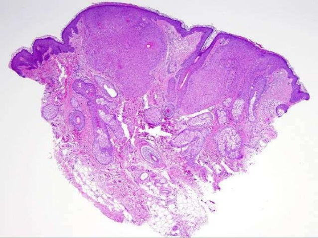 NUMEROUS HORN CYST IN THE DERMIS. CYST LINED BY EOSINOPHILIC CELLS , CONTAIN KERATIN.