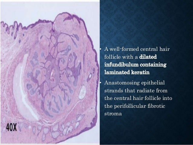 POROMAS • Originate from the outer cells of the intraepidermal (acrosyringeal) excretory ducts of eccrine sweat gland. • T...