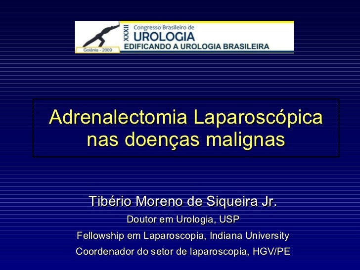 Adrenalectomia Laparoscópica nas doenças malignas Tibério Moreno de Siqueira Jr. Doutor em Urologia, USP Fellowship em Lap...