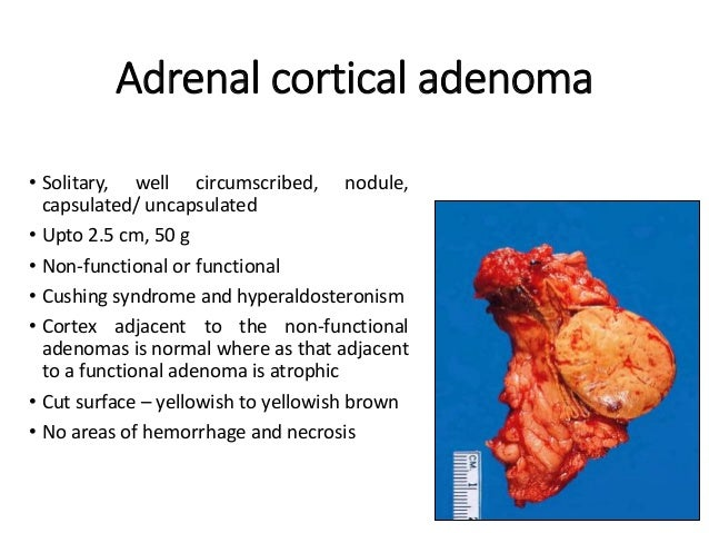 Adrenal gland diseases and tumors