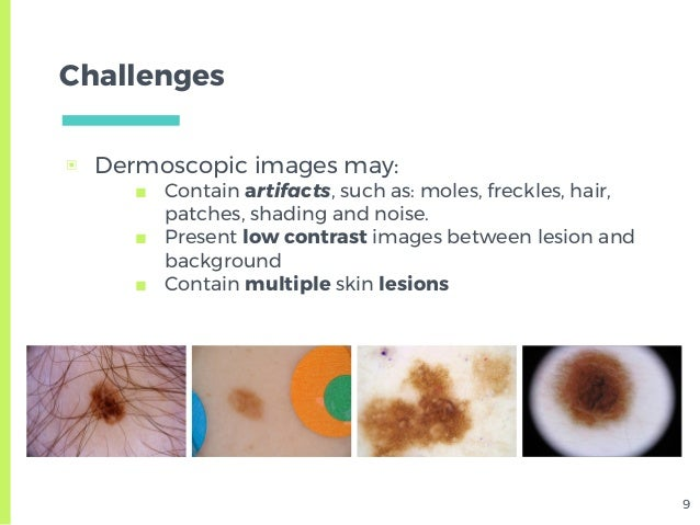 Skin Lesion Detection from Dermoscopic Images using Convolutional Neu…