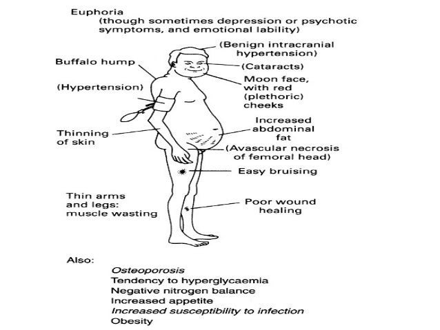 steroid induced myopathy pain