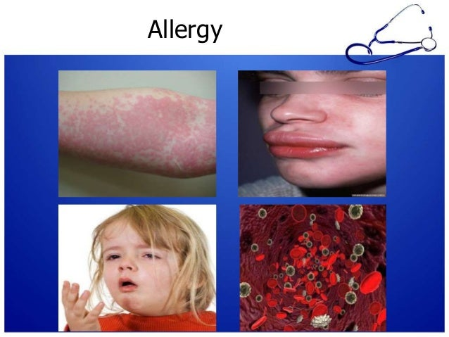 Clinical Manifestations Urticarial Rashes and Angioedema (Type I, III) Nonurticarial Rashes (Type I, II, IV) Anaphylact...