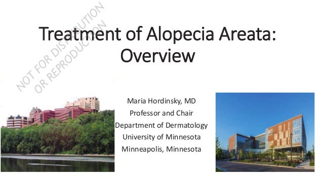 TTreatment of Alopecia Areata: Overview Maria Hordinsky, MD Professor and Chair Department of Dermatology University of Mi...