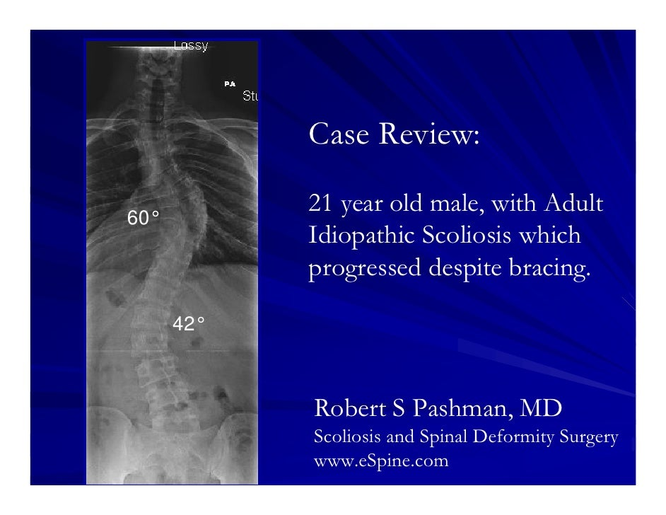 Case Review:            21 year old male, with Adult60°            Idiopathic Scoliosis which            progressed despit...