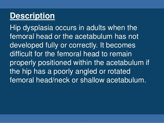 Adult Hip Dysplasia Presentation Slide 3