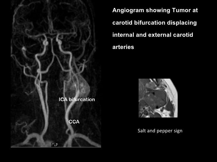 Mri In Neck Imaging