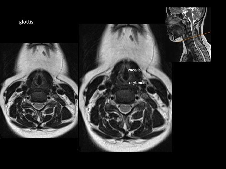MRI in neck imaging