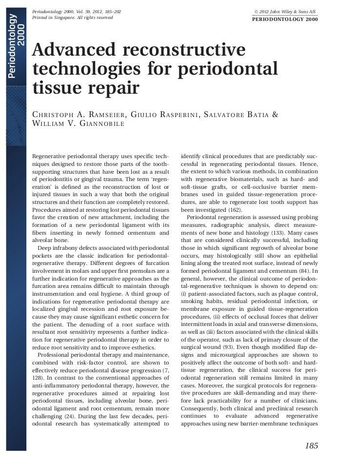 Periodontology 2000, Vol. 59, 2012, 185–202                                                 Ó 2012 John Wiley & Sons A/SPr...