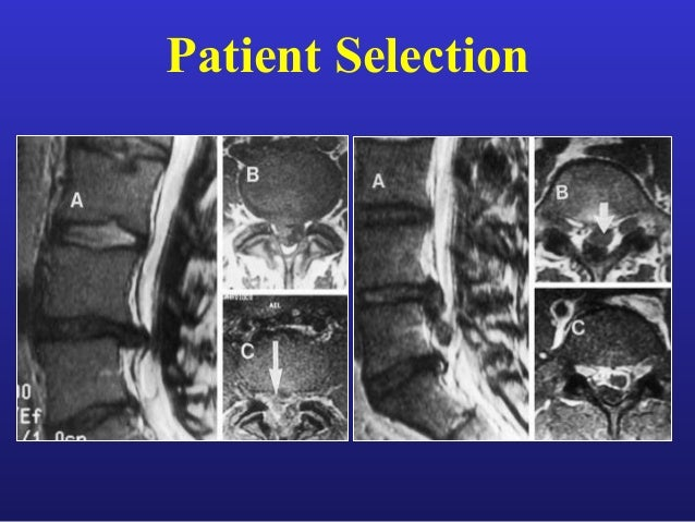 Advances In Spine Surgery Endoscopic And Minimally