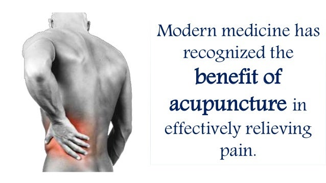 Acupuncture, Cupping, and Chinese Herbal Medicine