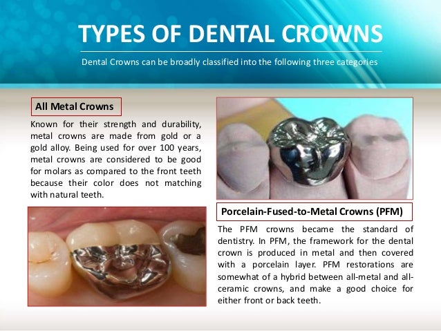 2 TYPES OF DENTAL CROWNS