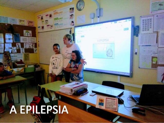 A EPILEPSIA