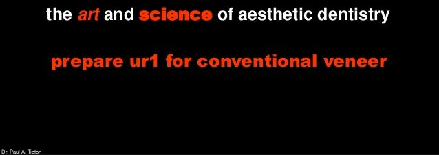 Dr. Paul A. Tipton the art and science of aesthetic dentistry prepare ur1 for conventional veneer