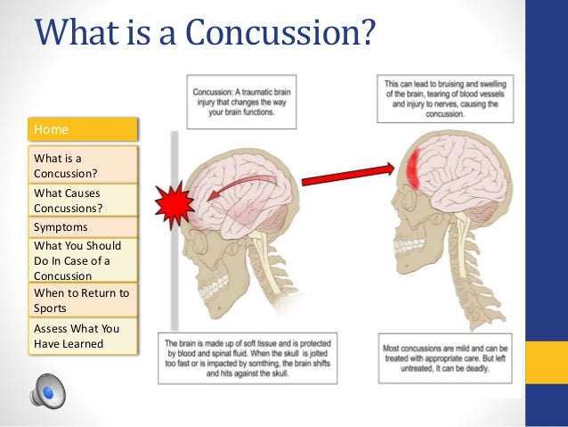 AET 545 Concussion Tutorial By J. Calhoun