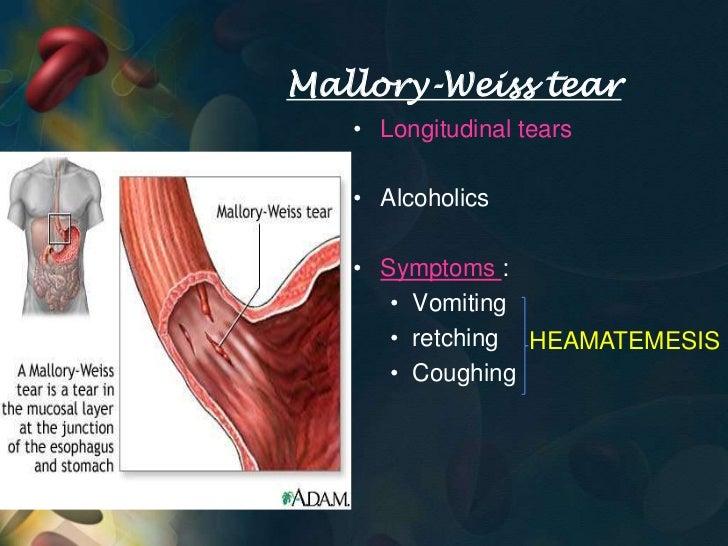 Aetiology Of Upper Gi Bleed