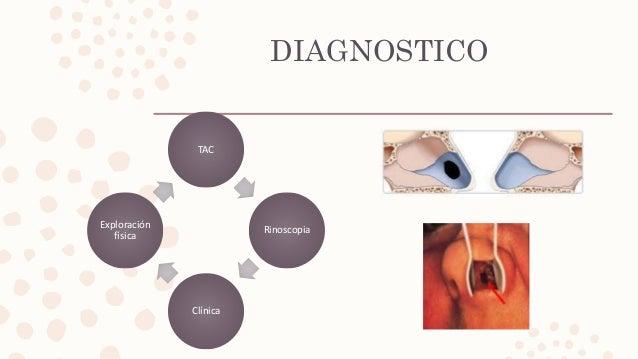 DIAGNOSTICO TAC Rinoscopia Clínica Exploración física