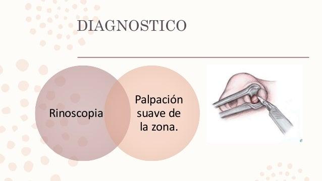 DIAGNOSTICO Rinoscopia Palpación suave de la zona.