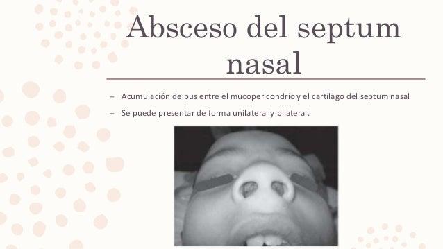 Absceso del septum nasal – Acumulación de pus entre el mucopericondrio y el cartílago del septum nasal – Se puede presenta...