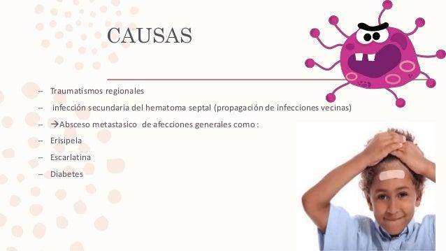 CAUSAS – Traumatismos regionales – infección secundaria del hematoma septal (propagación de infecciones vecinas) – Absces...