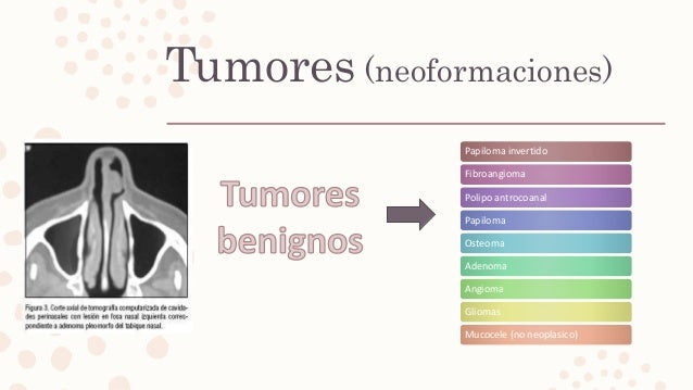 Tumores (neoformaciones) Papiloma invertido Fibroangioma Polipo antrocoanal Papiloma Osteoma Adenoma Angioma Gliomas Mucoc...