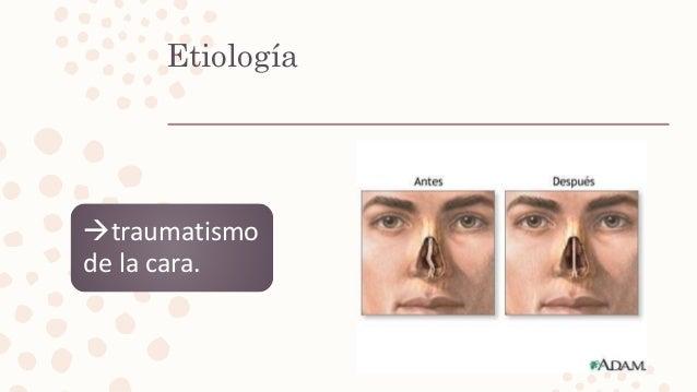 Etiología traumatismo de la cara.